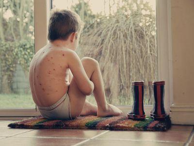 Boy with chicken pox