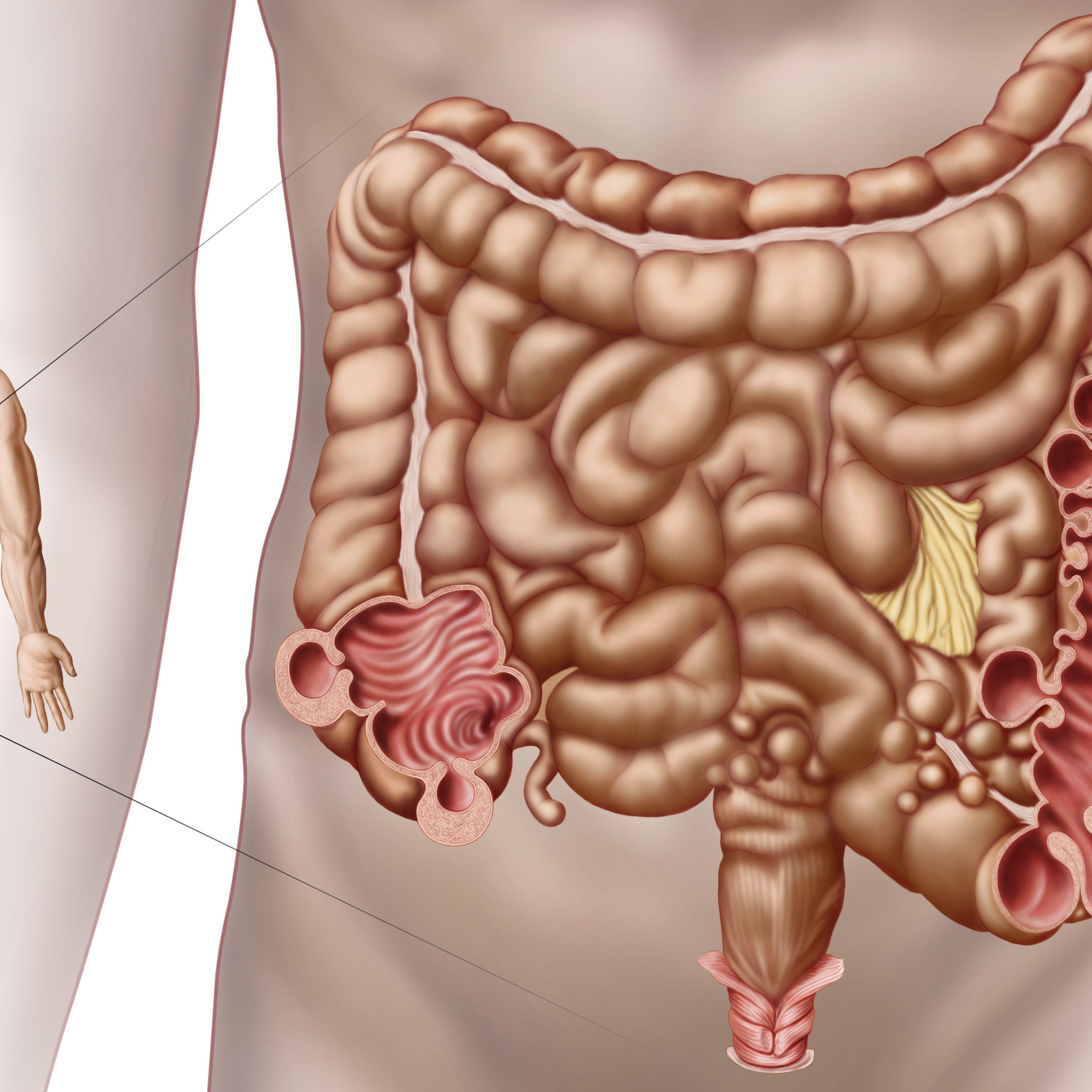 Diverticulitis: Symptoms, Causes, Diagnosis, Treatment