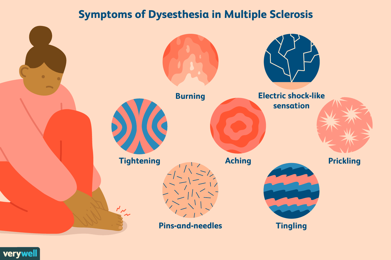 Dysesthesia in MS: Symptoms, Causes, Diagnosis, and Treatment