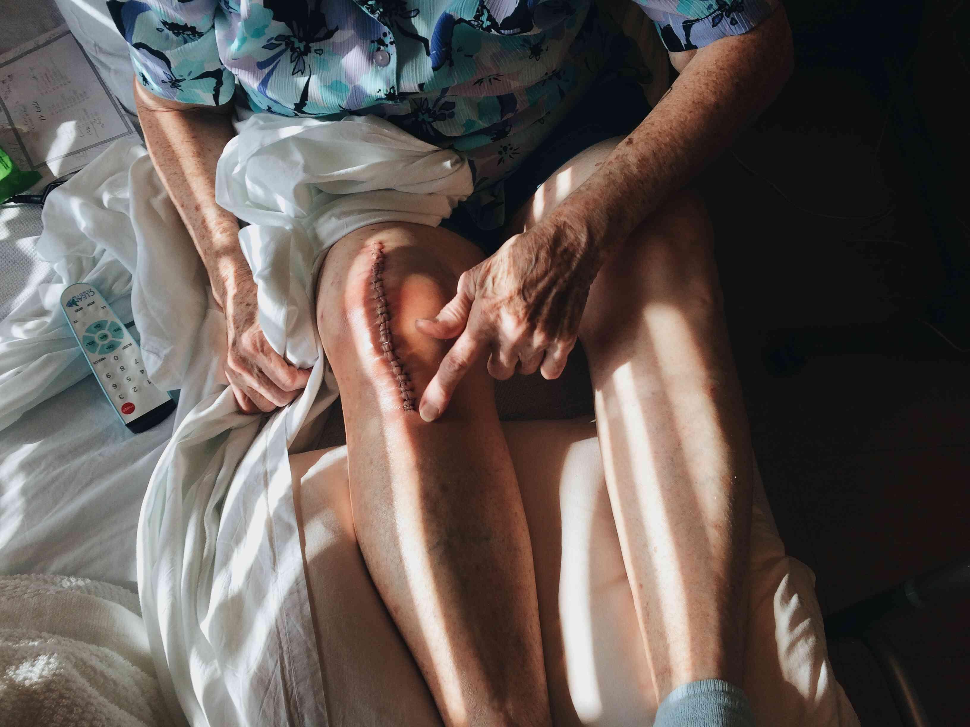 Leg following a knee replacement surgery