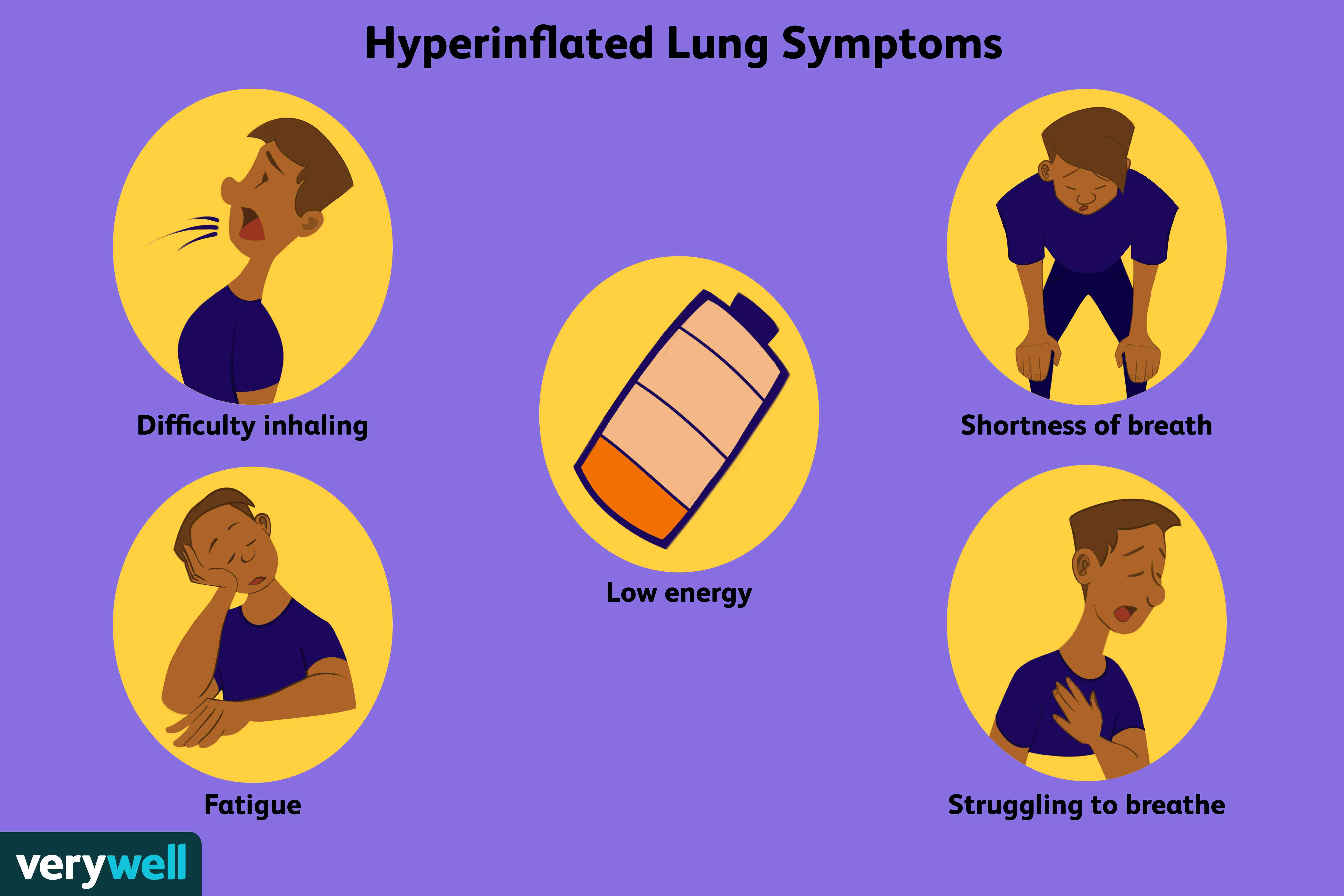Hyperinflated Lung Symptoms