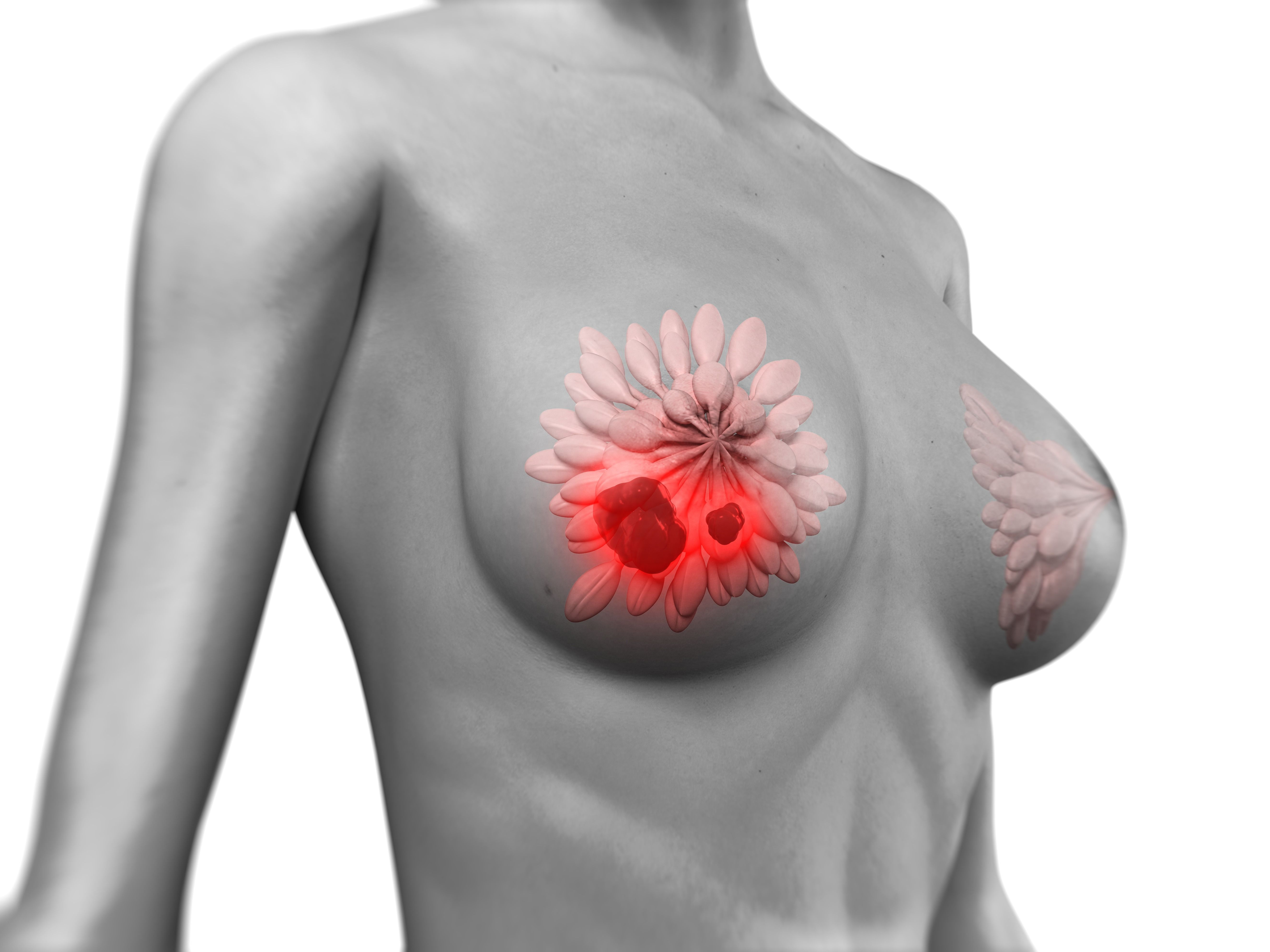 Radial Scars and Breast Cancer Risk