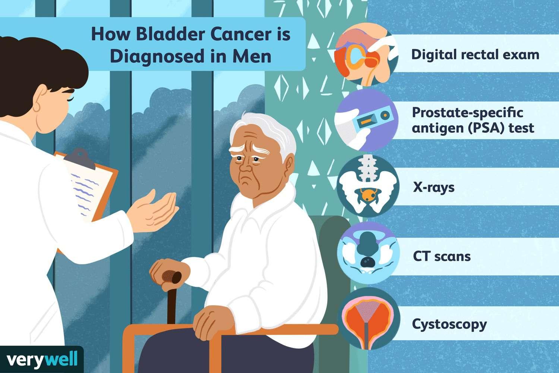how bladder cancer is diagnosed in men