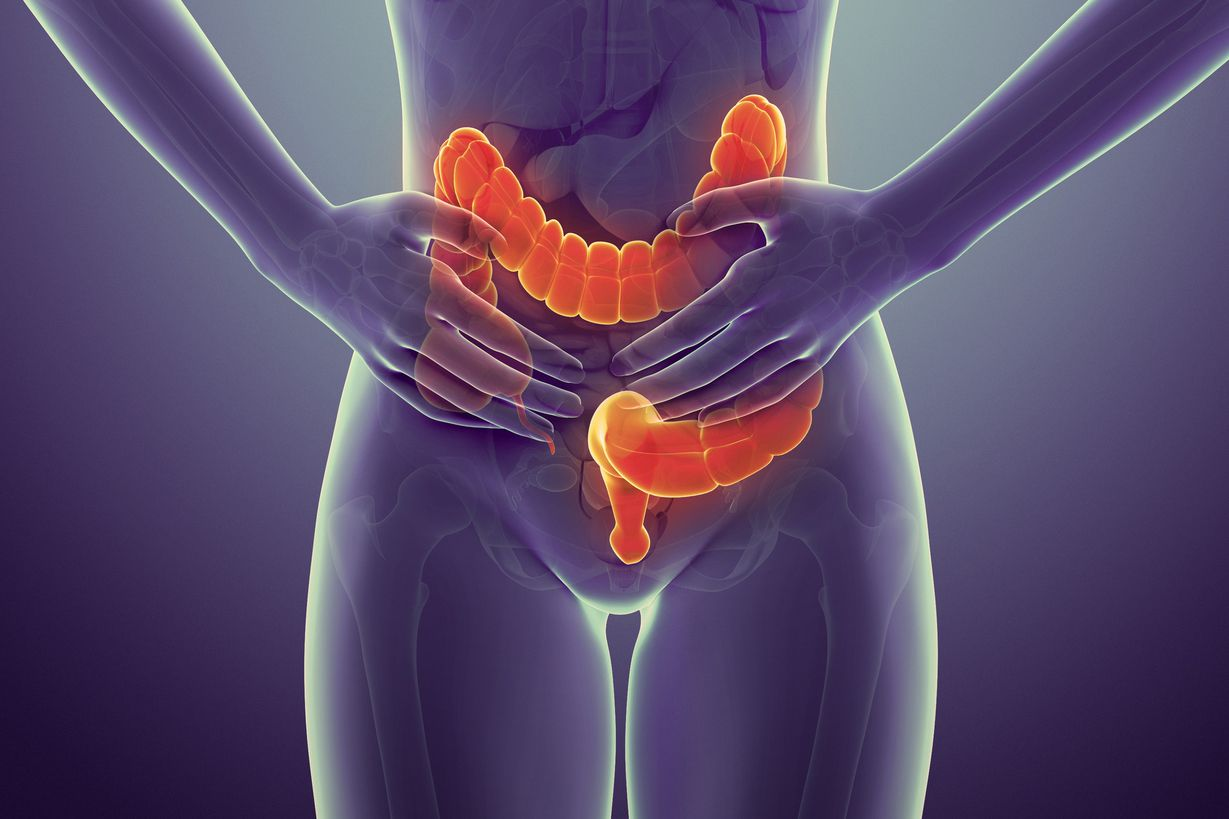 The Best Ibs Remes According To A Gastroenterologist