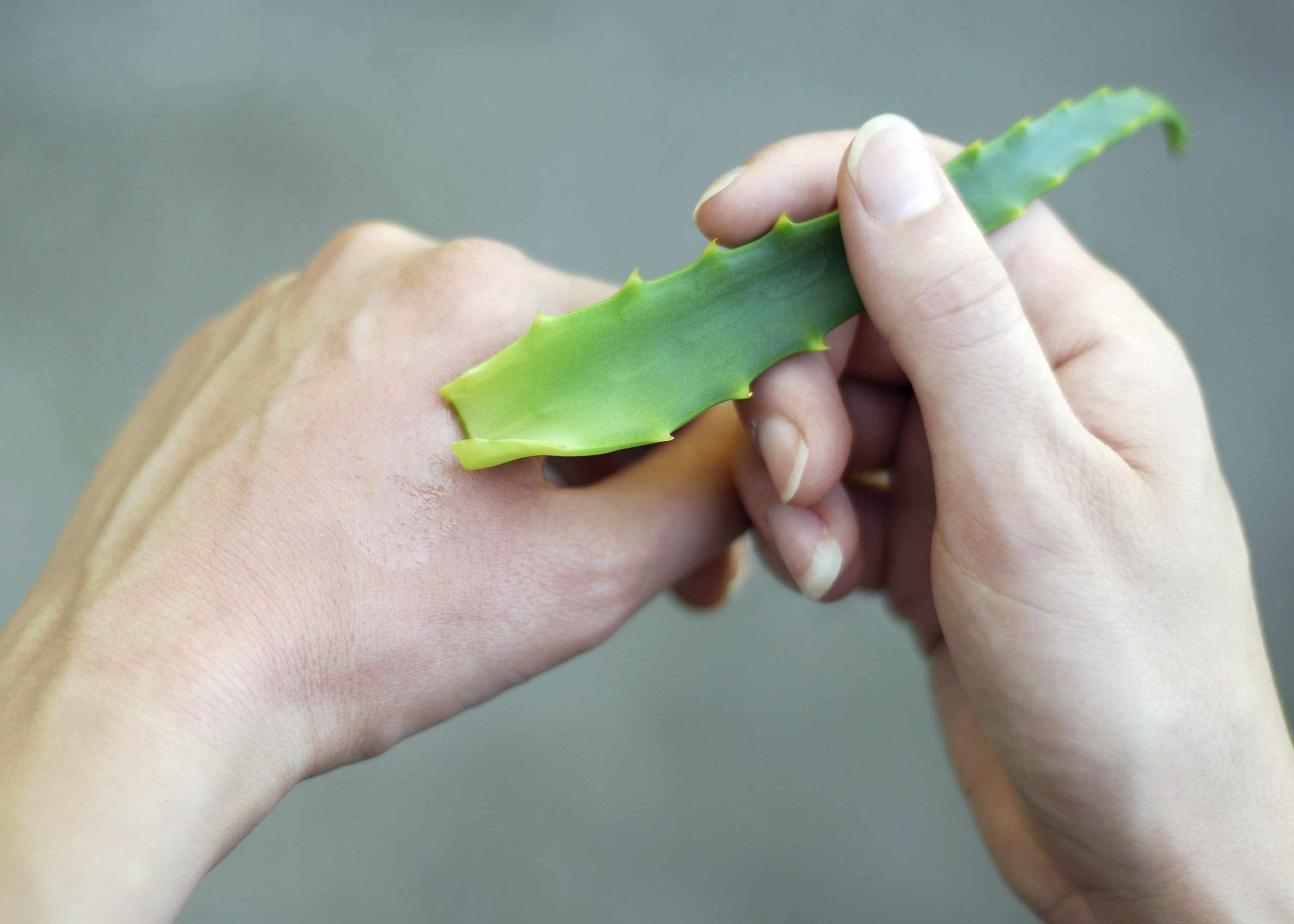 Someone putting aloe vera on their hand to treat a burn