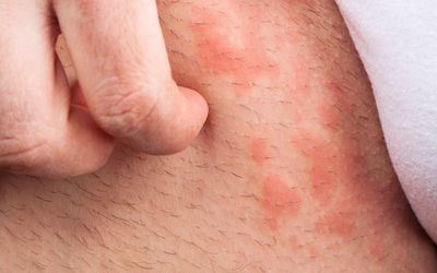 rash around the groin area