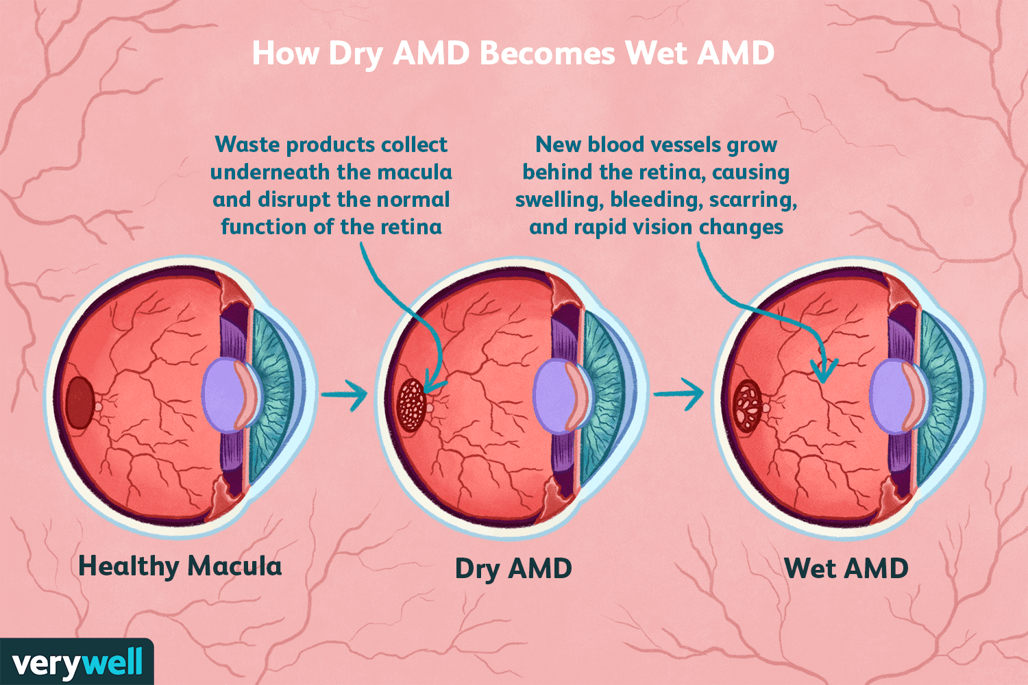 How Dry AMD Becomes Wet AMD