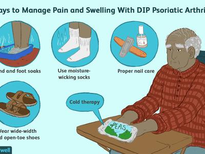 DIP Psoriatic Arthritis Symptom Relief