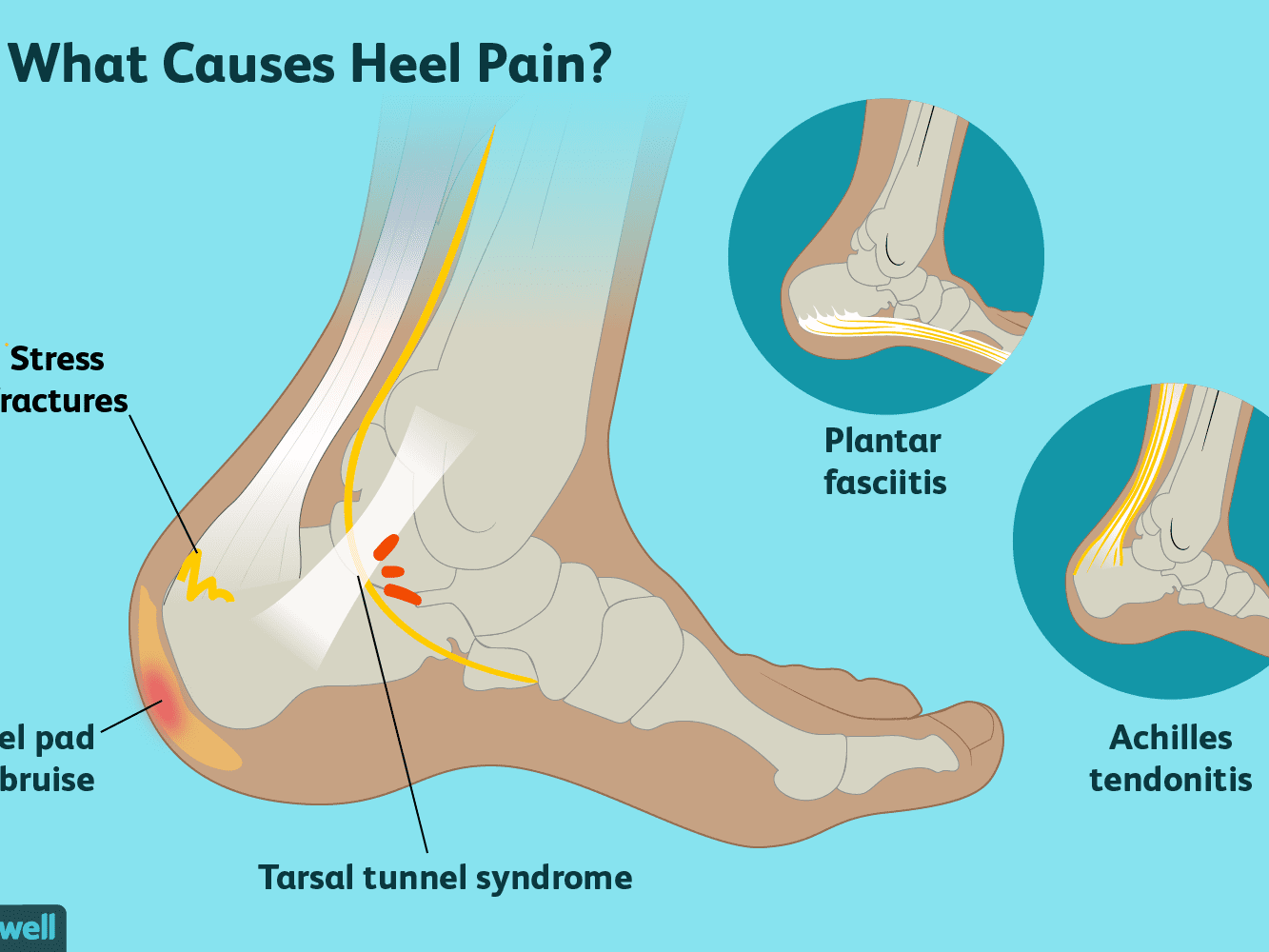 Heel Pain Causes Treatment And When To See A Doctor