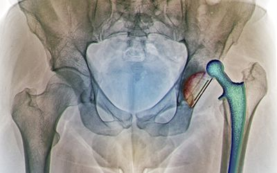 Is Anterior Hip Replacement Surgery Better?