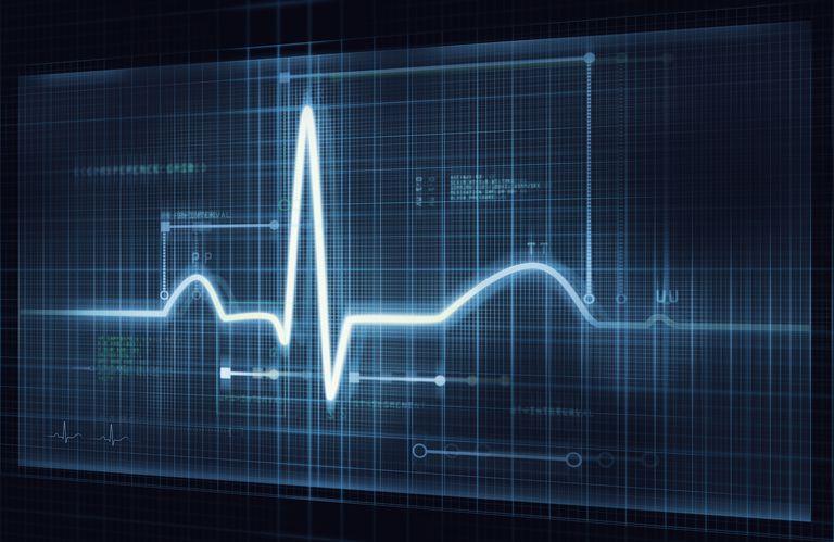 ECG output