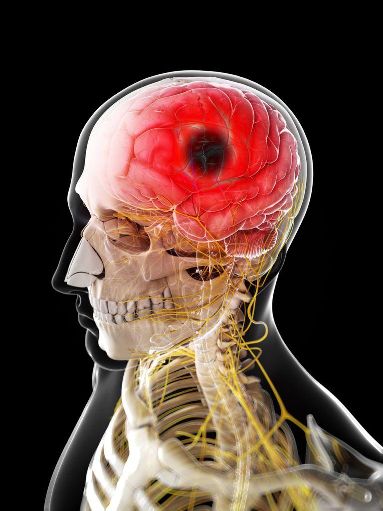 Can a Stroke Cause a Headache?