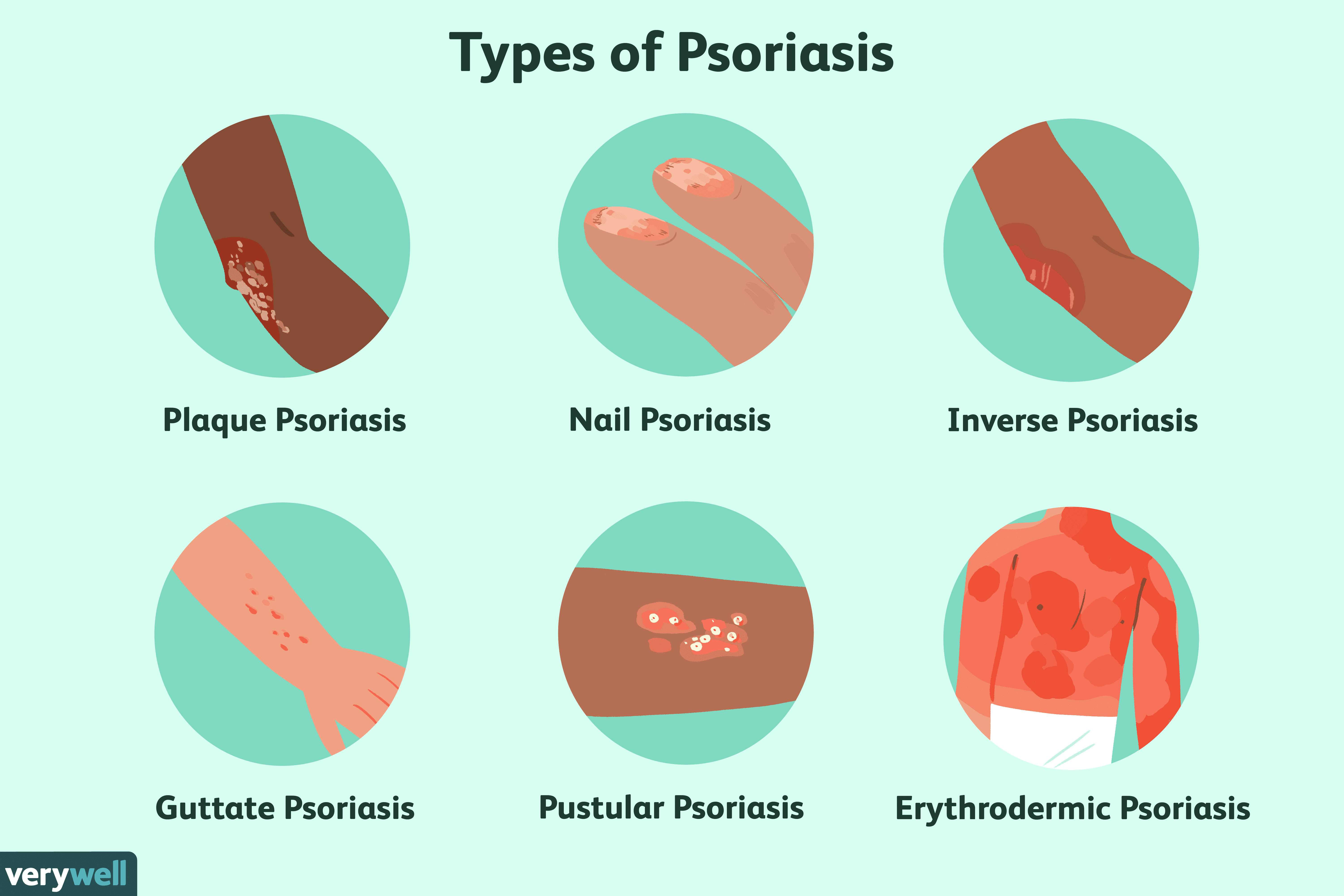 psoriasis worse after pregnancy