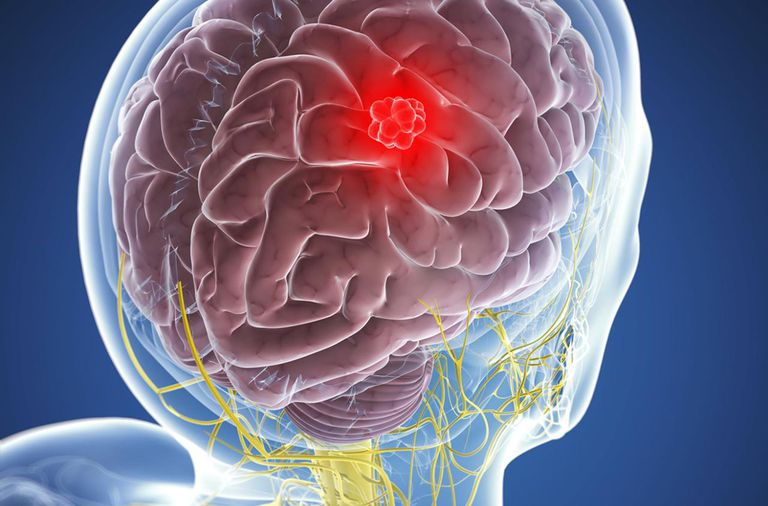 How To Manage And Treat Meningioma