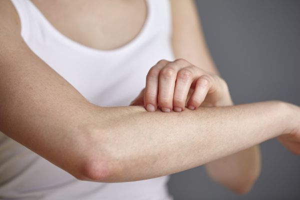 woman scratching her skin on her arm