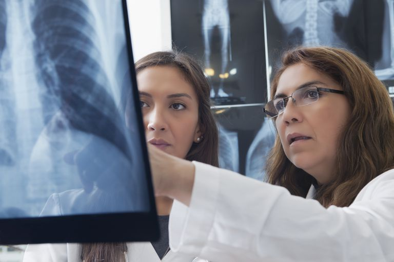 How Chest X-Rays Can Help Diagnose COPD