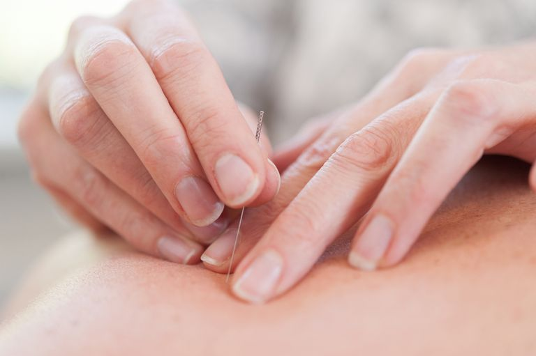 Close up of a woman putting an acupuncture needle into someone's skin