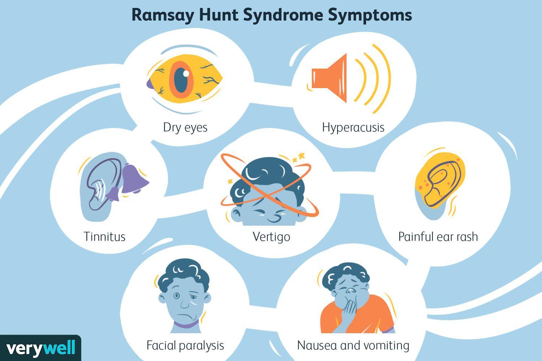 Ramsay Hunt Syndrome Symptoms