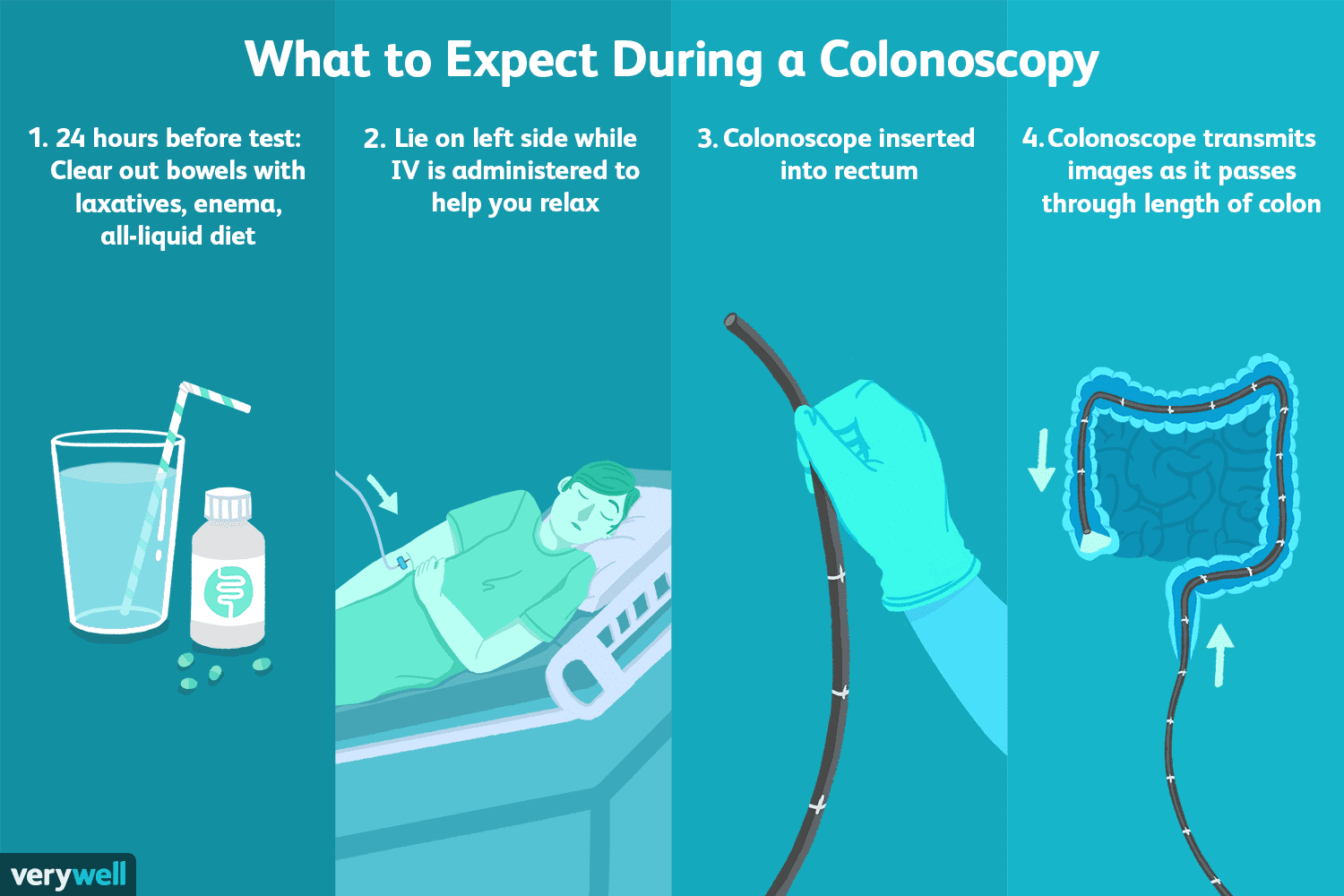 Uses, Procedure, and Results of a Colonoscopy