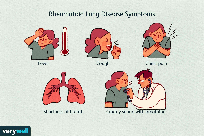 Rheumatoid Lung Disease Symptoms