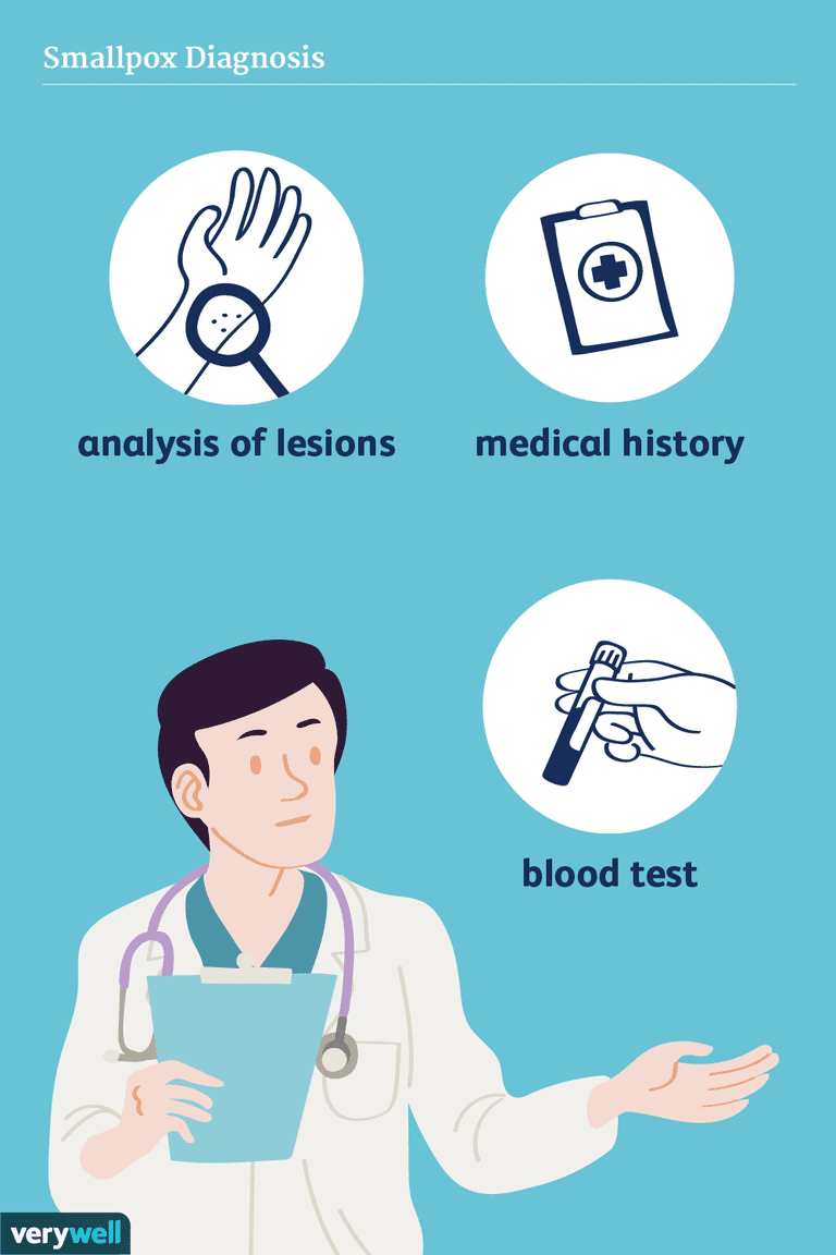 smallpox diagnosis