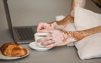 A dark-skinned person with vitiligo's hands holding a coffee cup in front of a laptop and a small dish with a croissant.