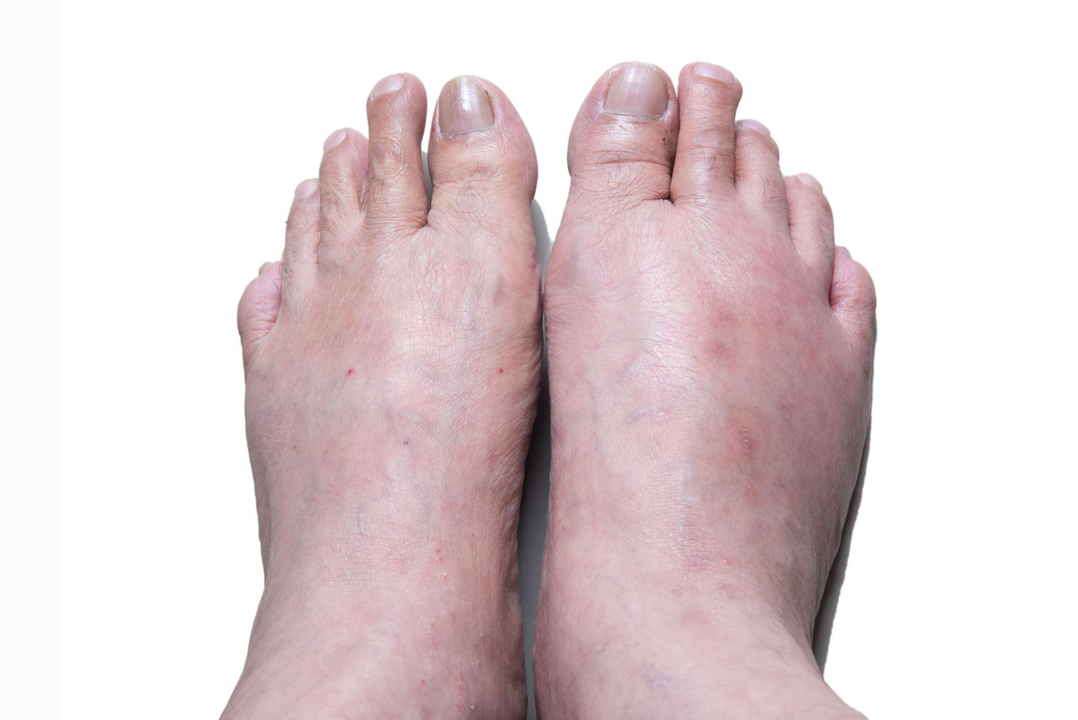 Gout Symptoms Pictures Treatment And More