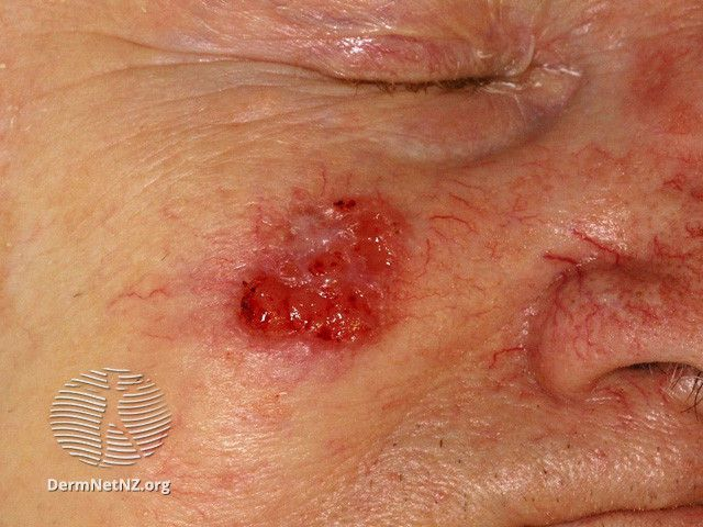 Squamous Cell Carcinoma (Central Hyperkeratosis