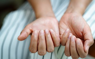 A close up of a white person's hands, their fingernails are dry and brittle.