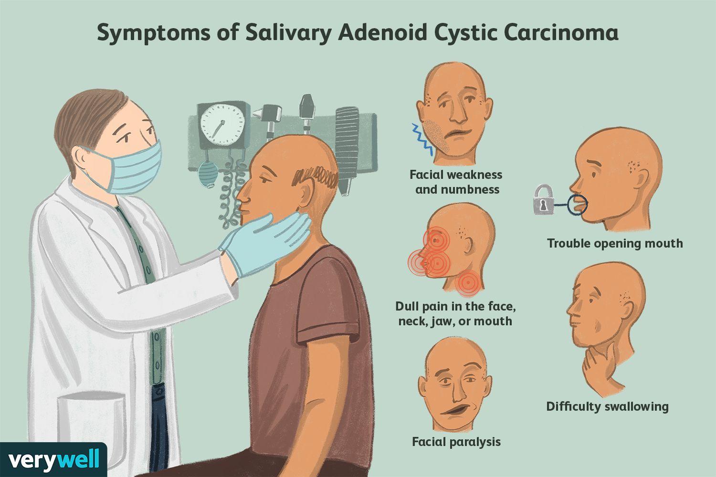 Symptoms of Salivary Adenoid Cystic Carcinoma