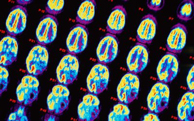 PET scans of brain showing astrocytoma (brain tumour)
