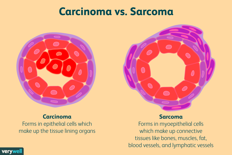 aggressive cancer sarcoma medicamente cu vierme lichide