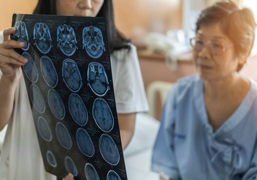 Older woman looking at brain MRI with doctor.