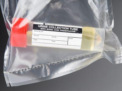 Urine sample ready for a urinalysis