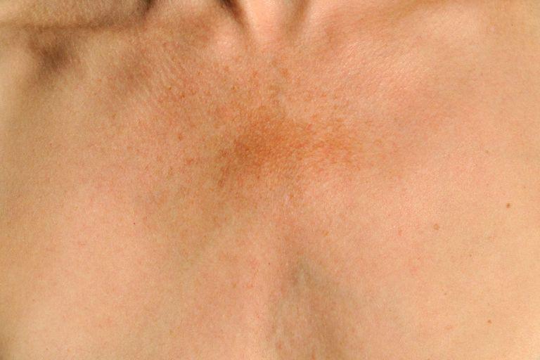 Melasma on a woman's chest - how to treat melasma