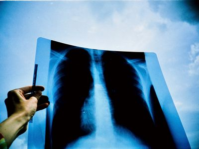 Hand holding chest x-ray against blue sky