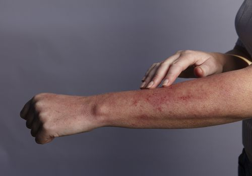 person with rash on arm