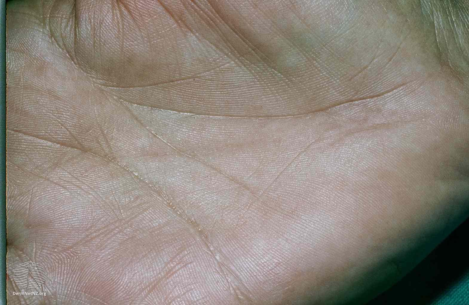 Palmar crease pigmentation in Addison disease