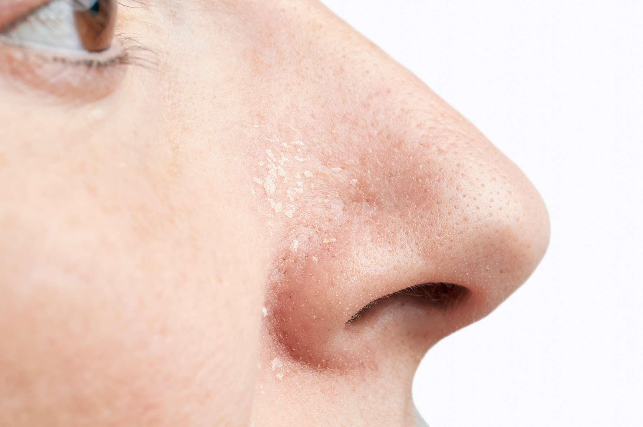 vörös viszkető foltok az arcon és a testen ekcma pikkelysömör hogyan kell kezelni