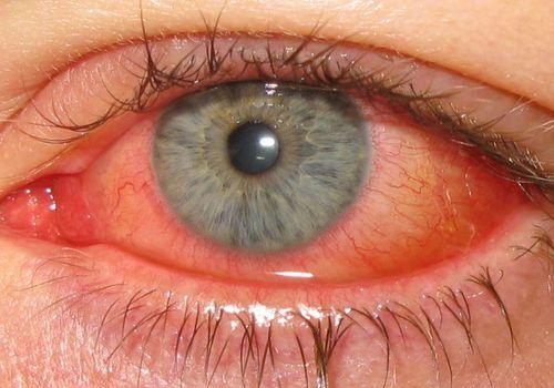 Epidemic adenovirus keratoconjunctivitis