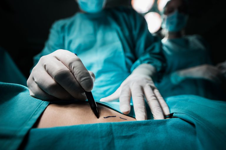 Surgeon marking incision lines on a body