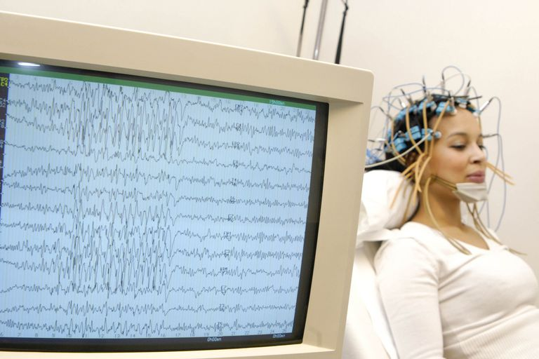 An EEG test is performed on an epilepsy patient.