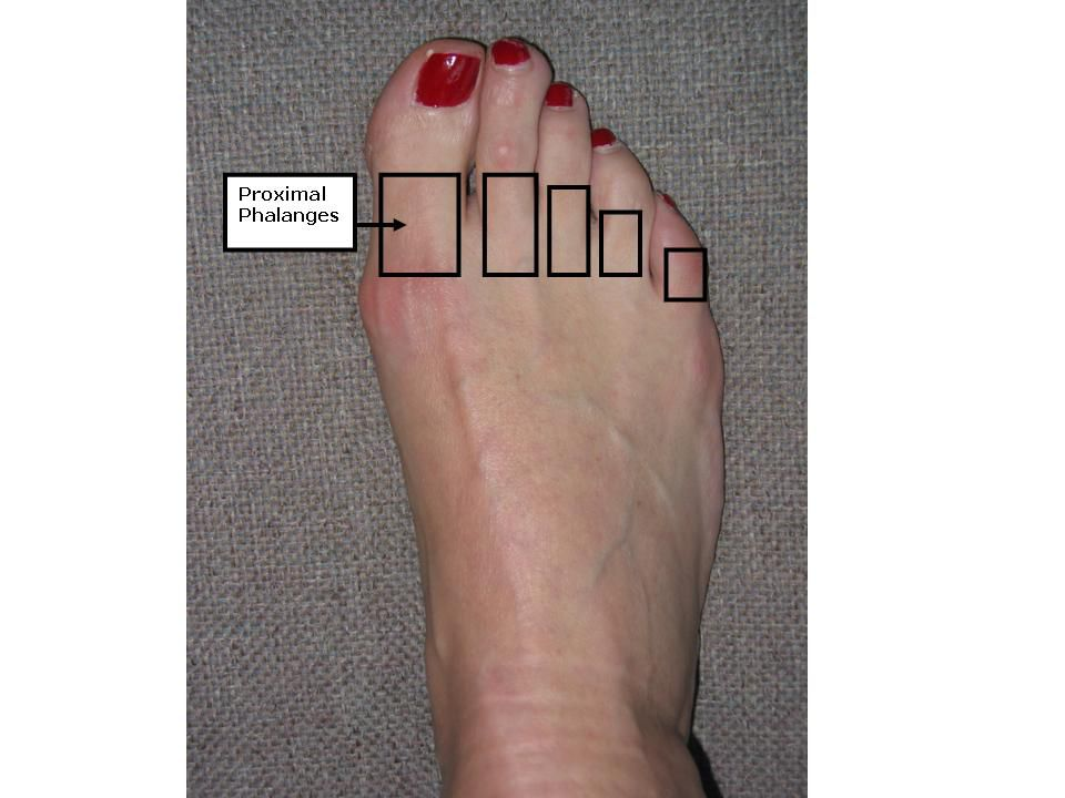 A foot with the proximal phalanges outlined