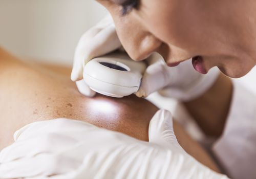 Dermatologist examining patient for signs of skin cancer Female dermatologist (30s) examining male patient's skin with dermascope, carefully looking at a mole for signs of skin cancer.