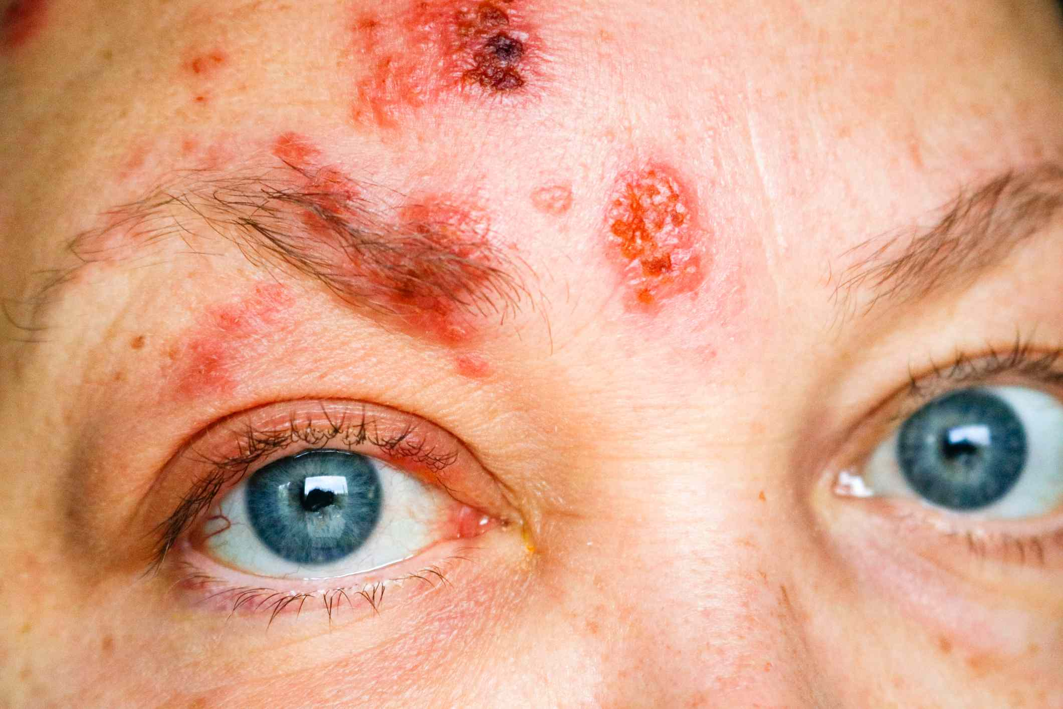 Shingles on face and around eye