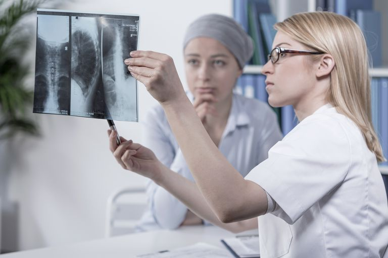 healthcare provider pointing out lung metastases on a breast cancer patients x-ray
