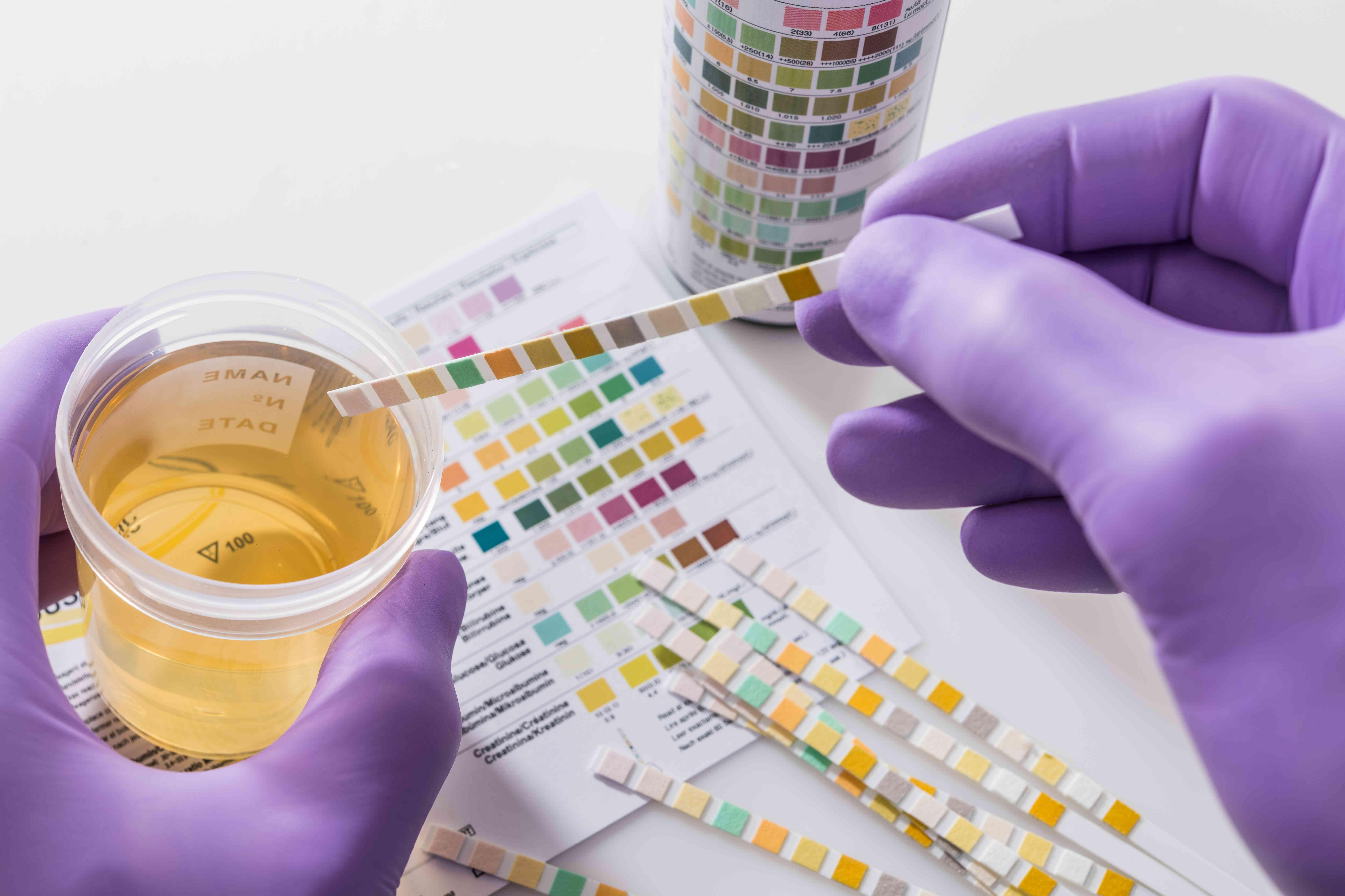 urine test strips in purple gloves