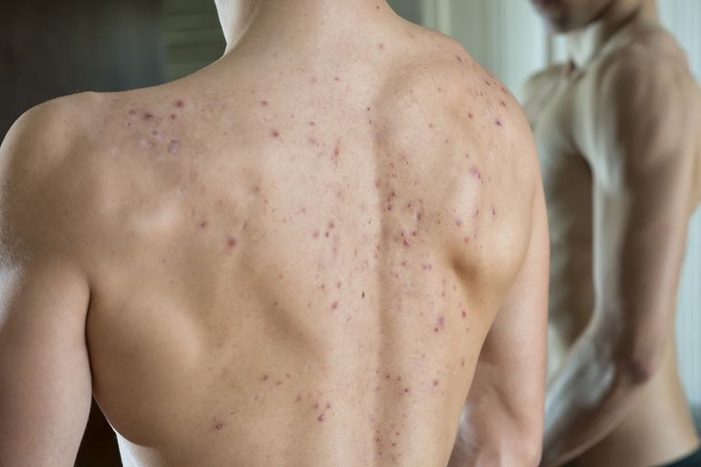 Young man with acne on his back
