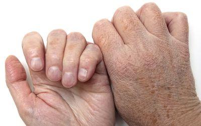 Lichen Simplex Chronicus and Eczema