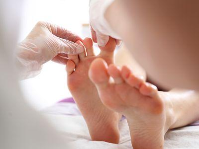 Toe and nail fungus. Woman at a dermatologist.